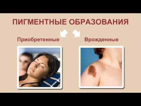 Лечение пигментных пятен. Лекция для пациентов