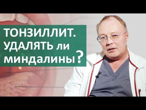 Тонзиллит. Необходимо ли удалять миндалины при тонзиллите? Ответ ЛОРа из клиники ЦЭЛТ.