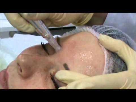 Фракционная мезотерапия