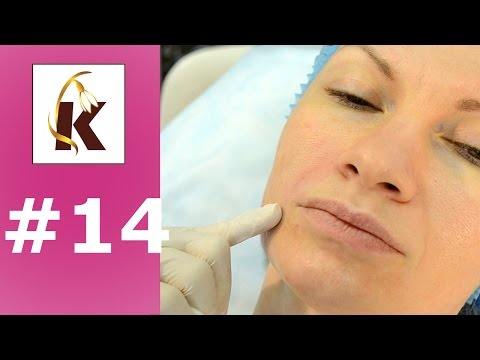 Контурная пластика, как убрать носогубные складки - понятная косметология #14