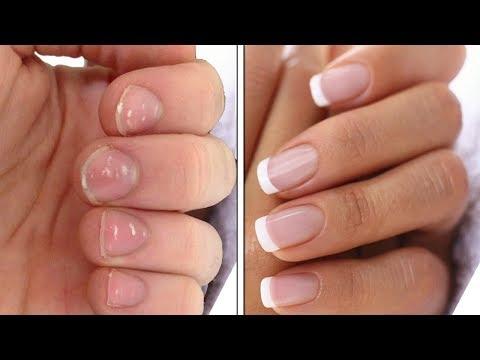 ✅3 Способа УКРЕПИТЬ НОГТИ | Лечение ногтей в домашних условиях