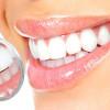 Отбеливание зубов: противопоказания