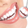 Чистка зубов в стоматологии