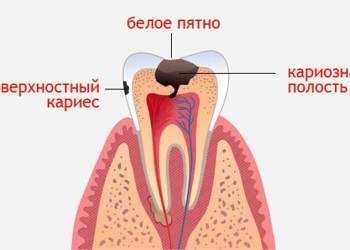 По каким причинам происходит разрушение зубов: научные исследования
