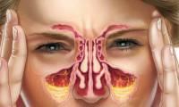 Хроническая заложенность носа – Причины и Способы Лечения