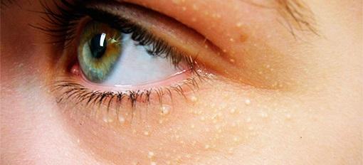 Белые точки под глазом