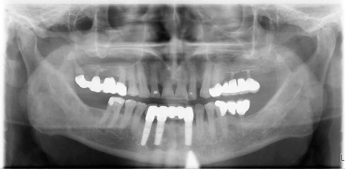 otsutstvie-zubov