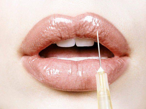 Коррекция губ гиалуроновой кислотой
