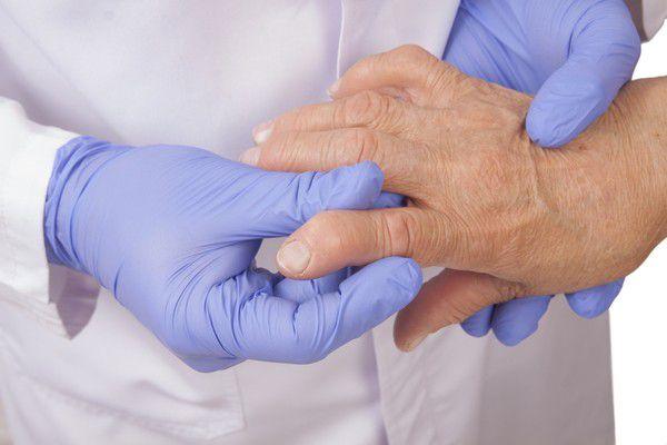 Особенности ревматоидного артрита