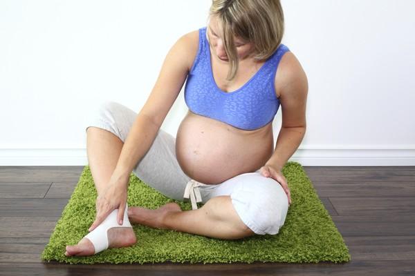Беременность и варикоз
