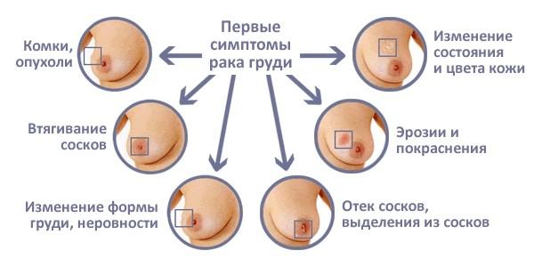 Факты о раке груди