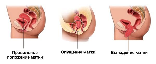 Как лечить опущение матки без операции