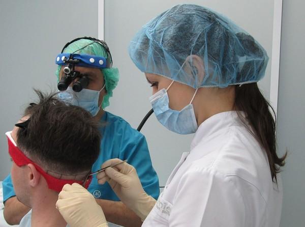 Современные методы пересадки волос