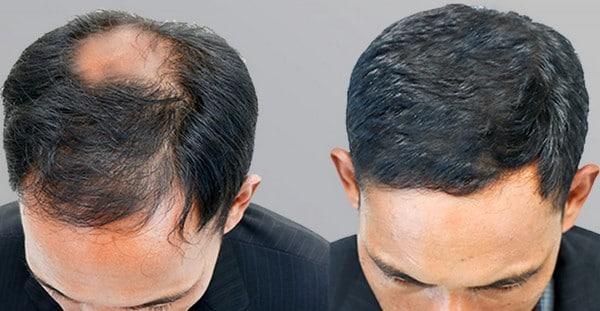 Секреты здоровых и красивых волос