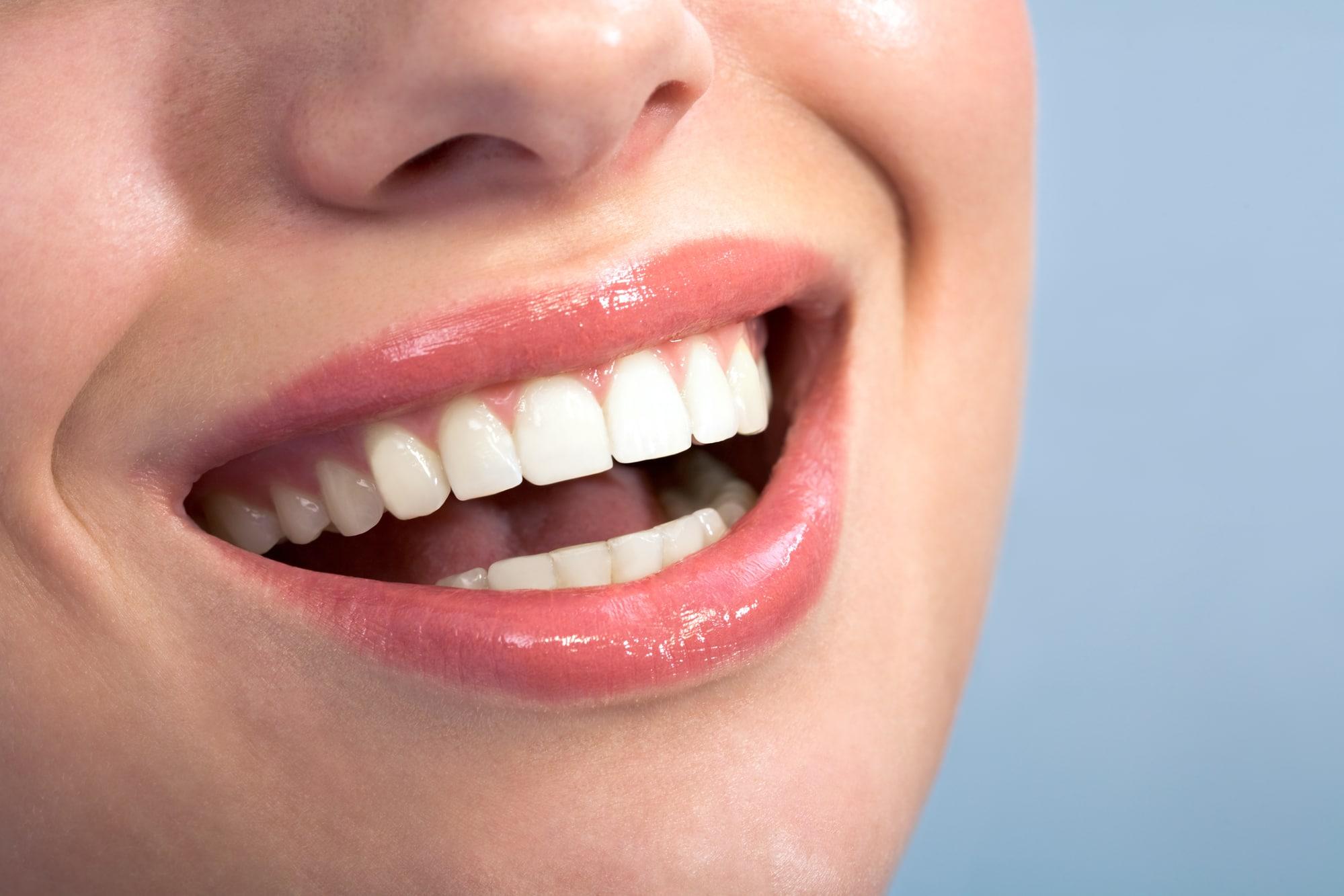Как стоматологические проблемы влияют на женскую красоту