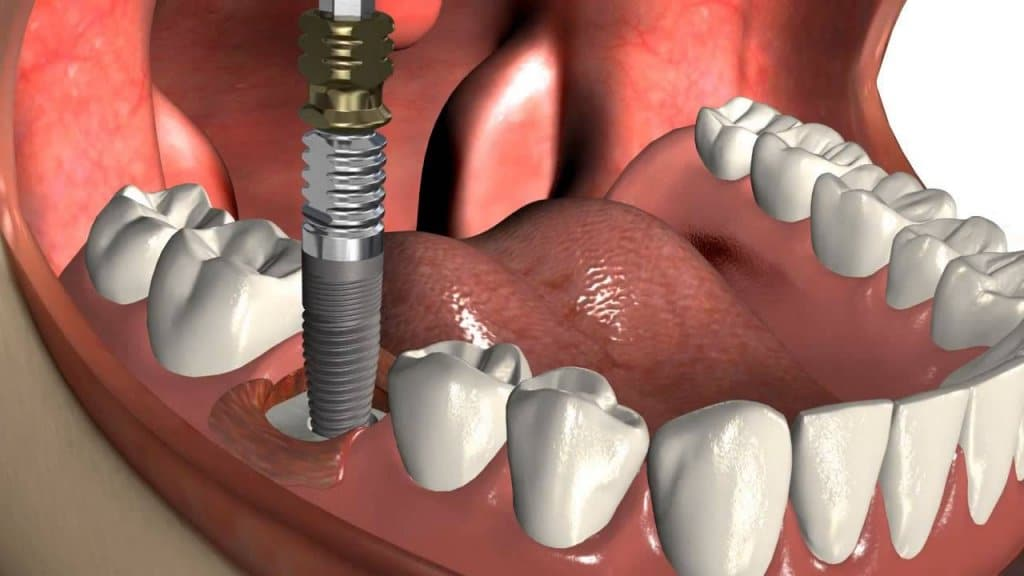 Четыре причины по которым вам не стоит бояться зубных имплантов