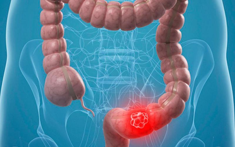 Атония кишечника: симптомы и лечение