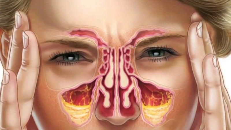 Хроническая заложенность носа - Причины и Способы Лечения